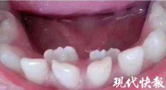 """长期""""吃软饭""""8岁男孩嘴里长了3排牙"""